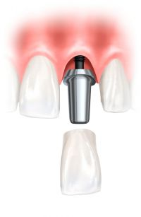 single crown on implant